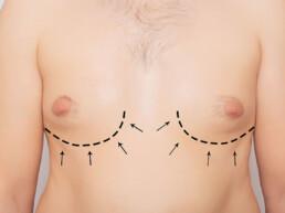 Borstvorming bij mannen (gynaecomastie)